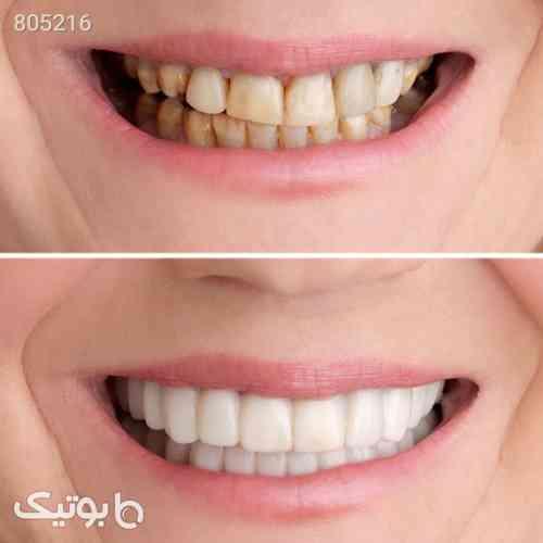 لمينت دندان مدل Big smile - بهداشت و مراقبت دهان و دندان